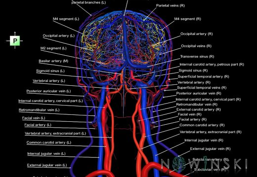 G4.T15.2-16.1.-17.2-18.2.V3.C2.L1.Intracranial arteries–Intracranial venous system–Extracranial arteries–Extracranial veins